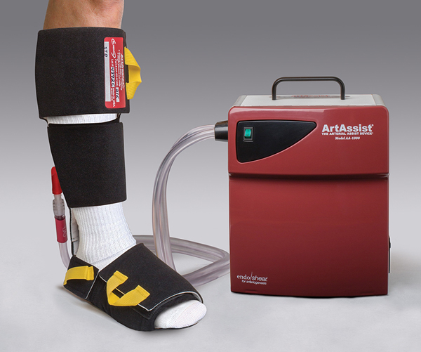 ArtAssist- The Arterial Assist Device shown with cuffs and tubing