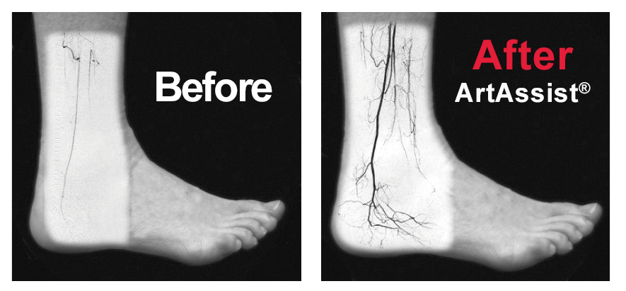 ArtAssist- Scans of before and after treatment