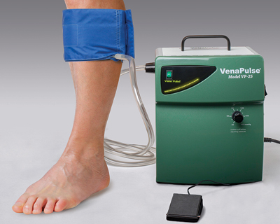 VenaPulse Device with rapid inflator calf cuff and foot switch